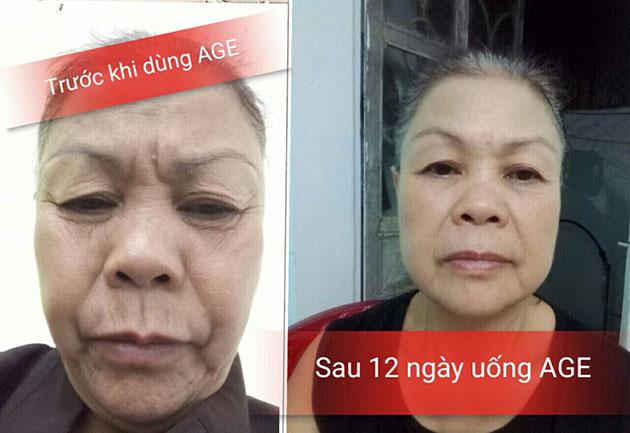 Nhân chứng sử dụng Sisel Age Pill